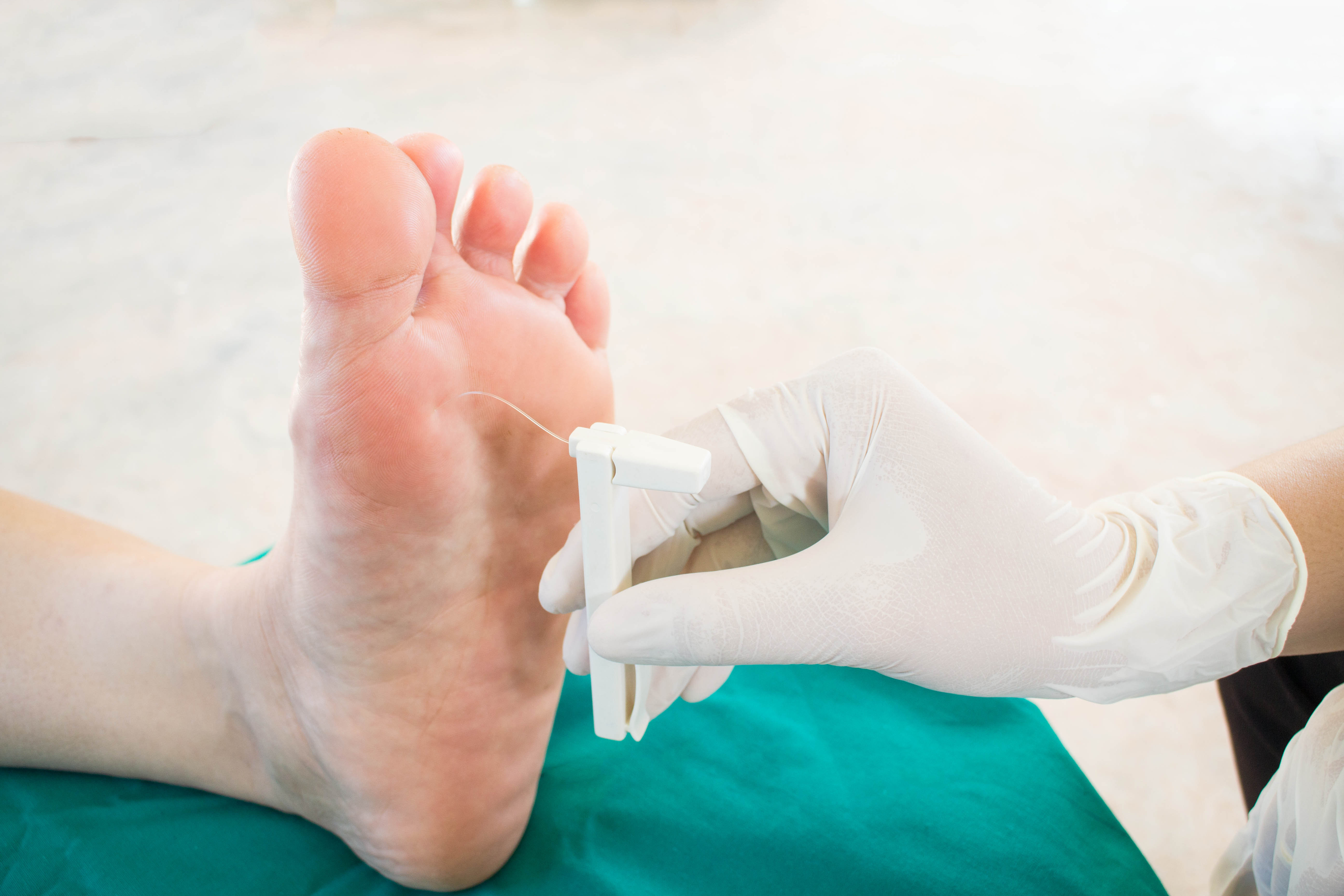 Bare foot receiving monofilament exam to detect nerve damage